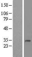 NBL1-09866 - DHRS12 Lysate