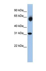 NBP1-54922 - DHRS2