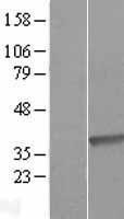 NBL1-09873 - DHRS9 Lysate