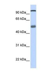 NBP1-57347 - DHX32
