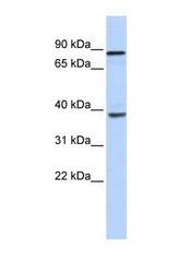 NBP1-57348 - DHX35