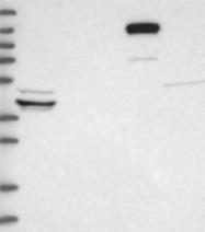 NBP1-89099 - DIAPH3