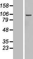 NBL1-09883 - DIAPH3 Lysate