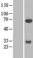 NBL1-07634 - DIP13B Lysate