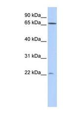 NBP1-58888 - DIRAS1