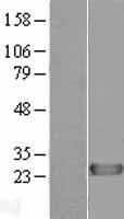 NBL1-09889 - DIRAS1 Lysate