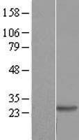 NBL1-09890 - DIRAS2 Lysate
