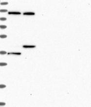 NBP1-85209 - DIS3
