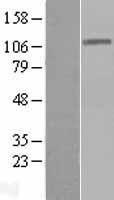 NBL1-09892 - DIS3 Lysate