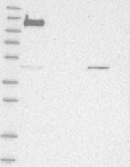 NBP1-84740 - DIS3-like exonuclease 2