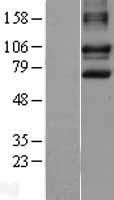 NBL1-09895 - DISC1 Lysate