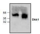 NBP1-45519 - Dickkopf-1