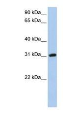 NBP1-69688 - Dickkopf-like protein 1