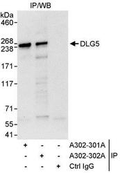NBP1-28694 - DLG5