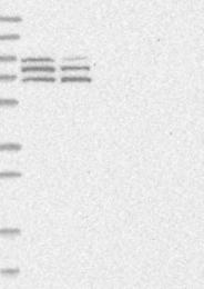 NBP1-90602 - DLGAP2