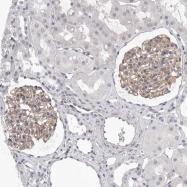 NBP1-90601 - DLGAP3
