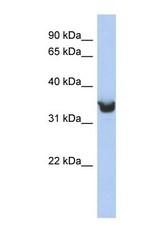 NBP1-62421 - DLK1
