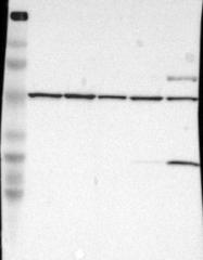 NBP1-85012 - DLST / DLTS