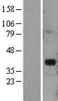 NBL1-09917 - DLX2 Lysate