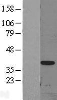 NBL1-09918 - DLX3 Lysate
