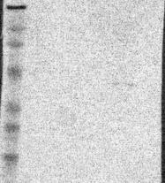 NBP1-82838 - DMC1 / LIM15