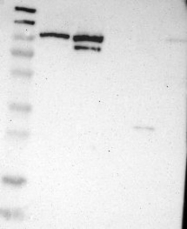 NBP1-87720 - DNA ligase 3