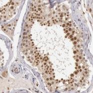 NBP1-87405 - DNA ligase 4