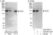 NBP1-47257 - POLA1