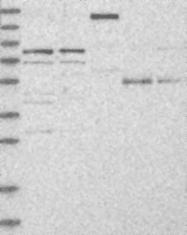 NBP1-87166 - POLH / RAD30