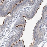NBP1-84464 - DNAH5