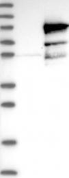 NBP1-84465 - DNAI1