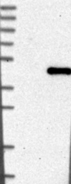 NBP1-84900 - DNAJB11