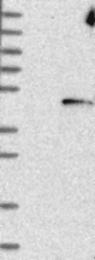 NBP1-81691 - DNAJB5 / HSC40