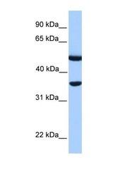 NBP1-54951 - DNAJB6