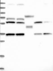 NBP1-84614 - DNAJC17