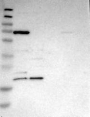 NBP1-80621 - DNAJC30 / WBSCR18