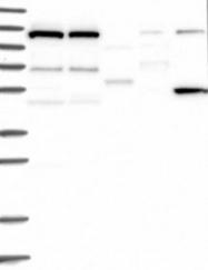 NBP1-81507 - DNAJC6