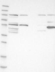 NBP1-86920 - DNAJC7 / TPR2