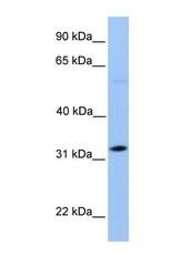 NBP1-56318 - DNALI1