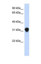 NBP1-56390 - DNALI1
