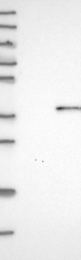 NBP1-84999 - Deoxyribonuclease-1
