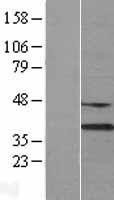 NBL1-09963 - DNASE1L3 Lysate