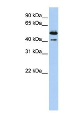 NBP1-62279 - Deoxyribonuclease-2-beta