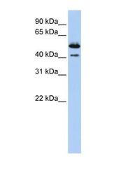 NBP1-62279 - Deoxyribonuclease-2-beta