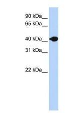 NBP1-69308 - Deoxyribonuclease-2-beta