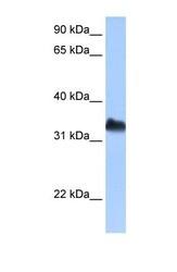 NBP1-57258 - DND1 / RBMS4