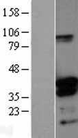 NBL1-09975 - DNTTIP1 Lysate