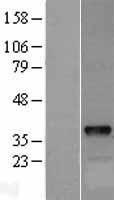 NBL1-09980 - DOK5 Lysate