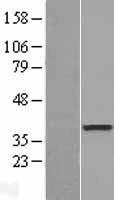 NBL1-09981 - DOK6 Lysate