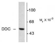 NB300-252 - AADC / DDC